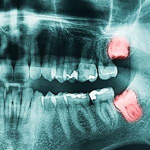 Chirurgia_300x300