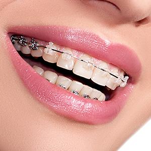 Ortodonzia_Apertura 300x300