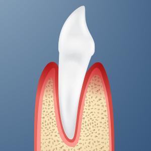 Parodontologia_300x300