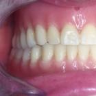 Implantologia_CaricoImm_300x300