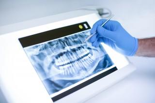 Panoramica digitale extraorale Ortopantomografia Studio Bianconi dentista Bolzano