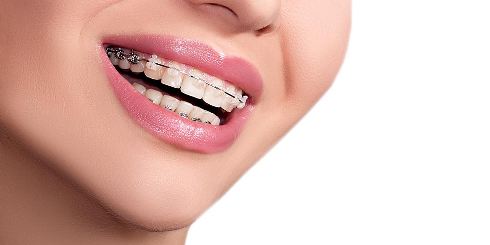 Ortodonzia Apparecchio fisso bracket trasparenti Studio Bianconi dentista Bolzano